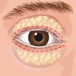 Cirurgia palpebra dos olhos - palpebra
