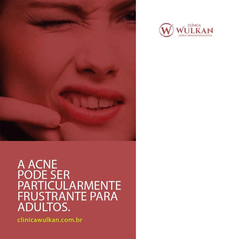 A acne pode ser particularmente frustrante para adultos.