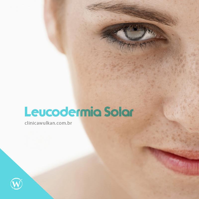 Leucodermia Solar