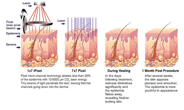 peeling a laser em sao paulo dermatologista estetica