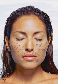 tratamento com sculptra em sao paulo jardim osasco alphaville dermatologista