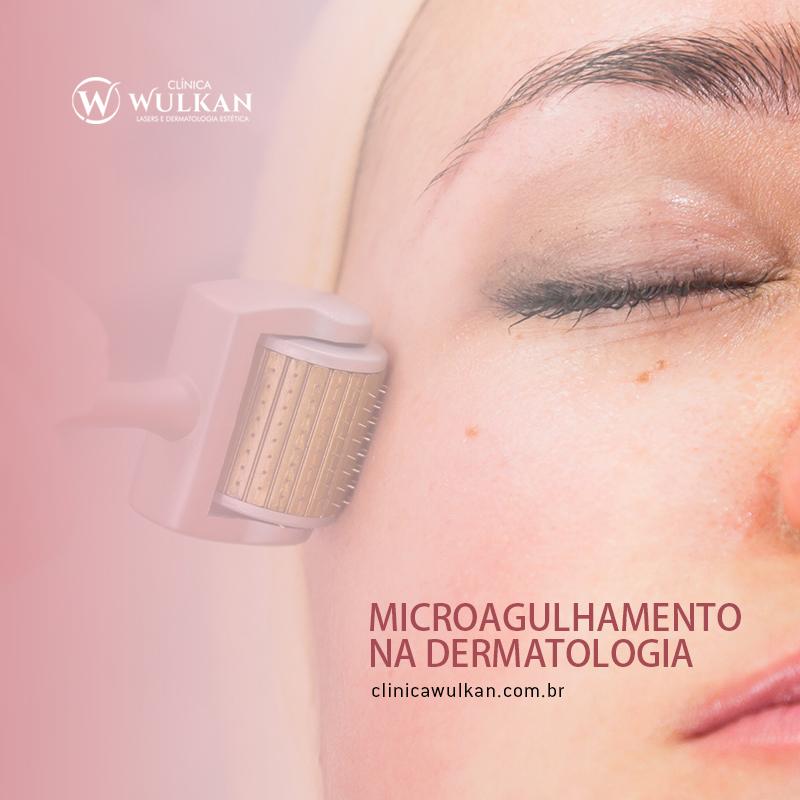 Microagulhamento na Dermatologia