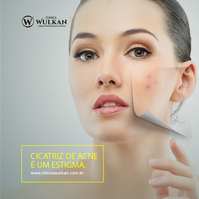 Cicatriz de acne é um estigma.