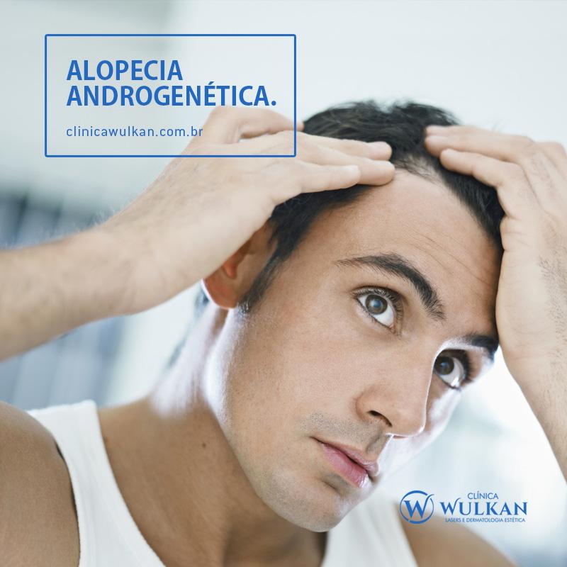 Alopecia androgenética.