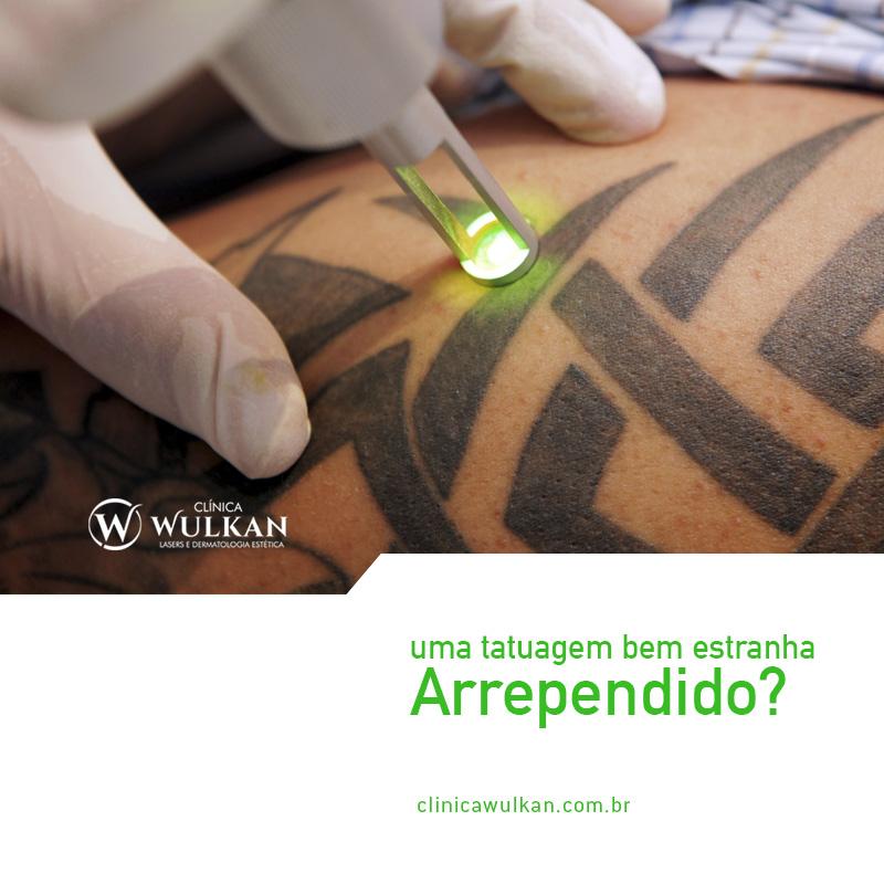 Remoção de tatuagem a laser