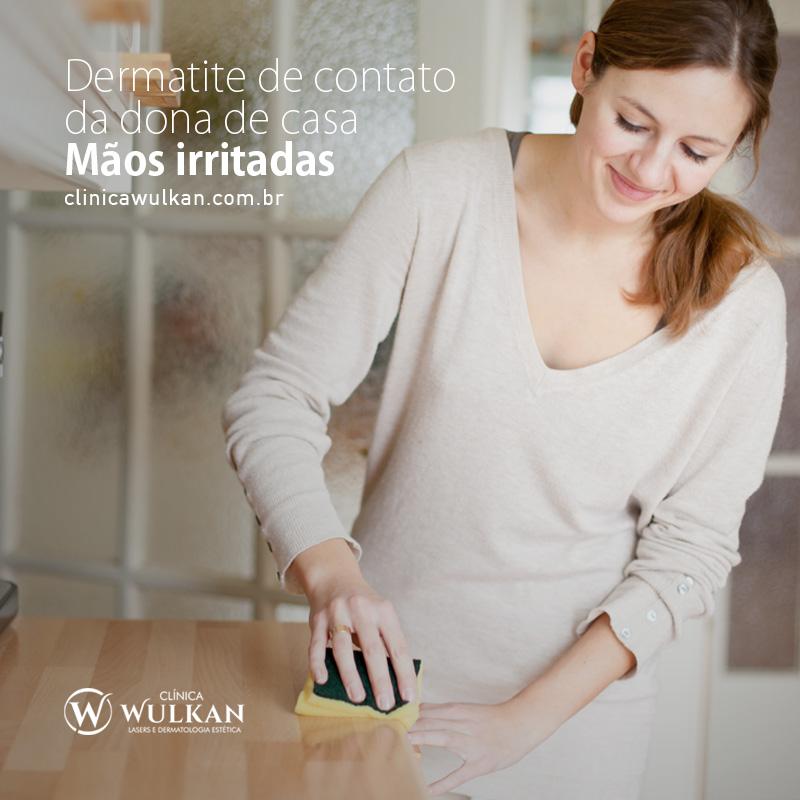 Dermatite de contato da dona de casa – Mãos irritadas.
