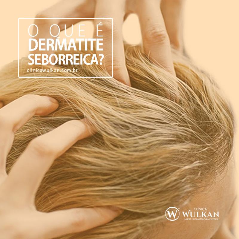 O que é dermatite seborreica?