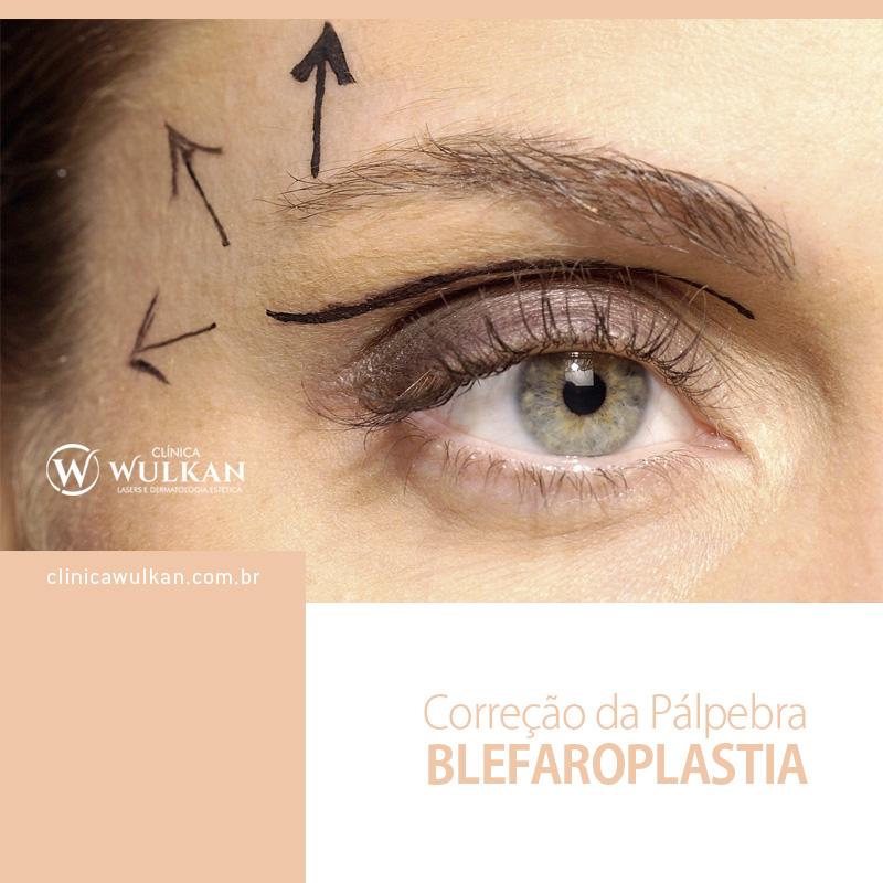Correção da Pálpebra - Blefaroplastia