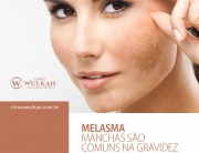 Melasma – manchas são comuns na gravidez