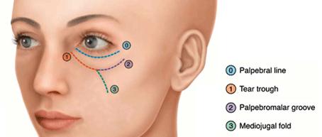 preenchimento de olheira especialista md codes