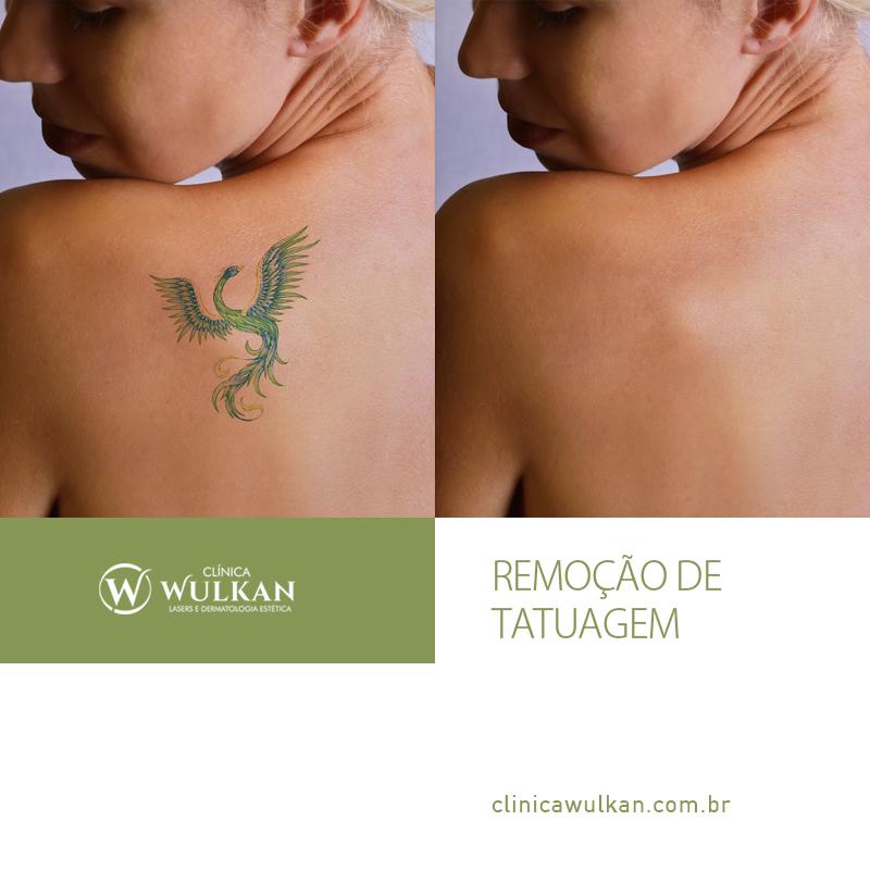 Tratamento de remoção de tatuagem