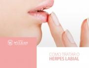 Como tratar o Herpes Labial