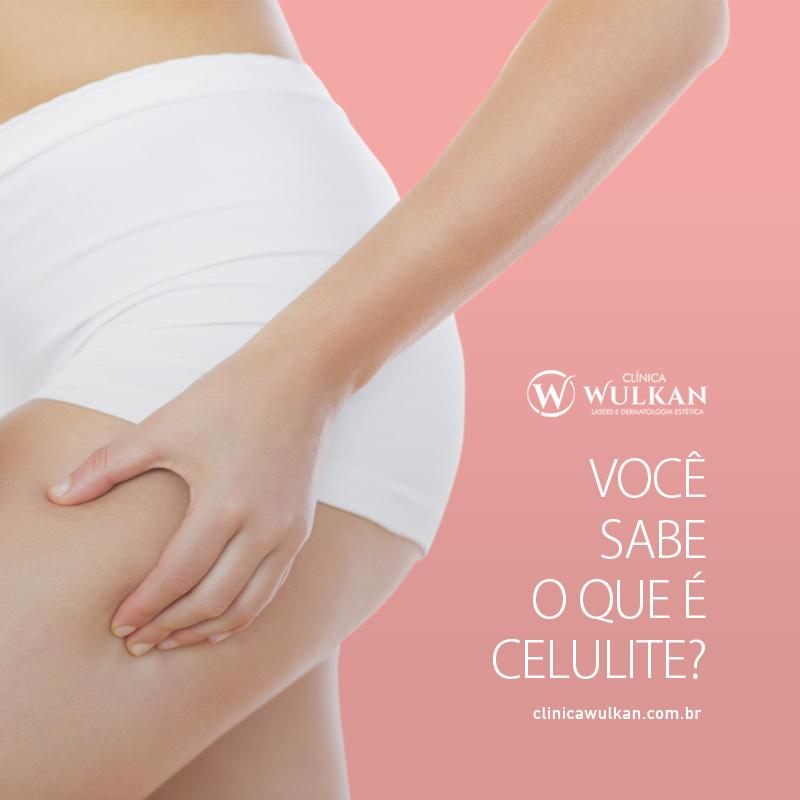 clinicawulkan_Celulite