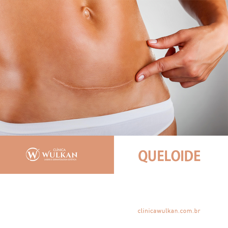 O que é Queloide?