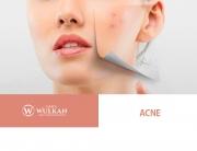clinicawulkan_Acne