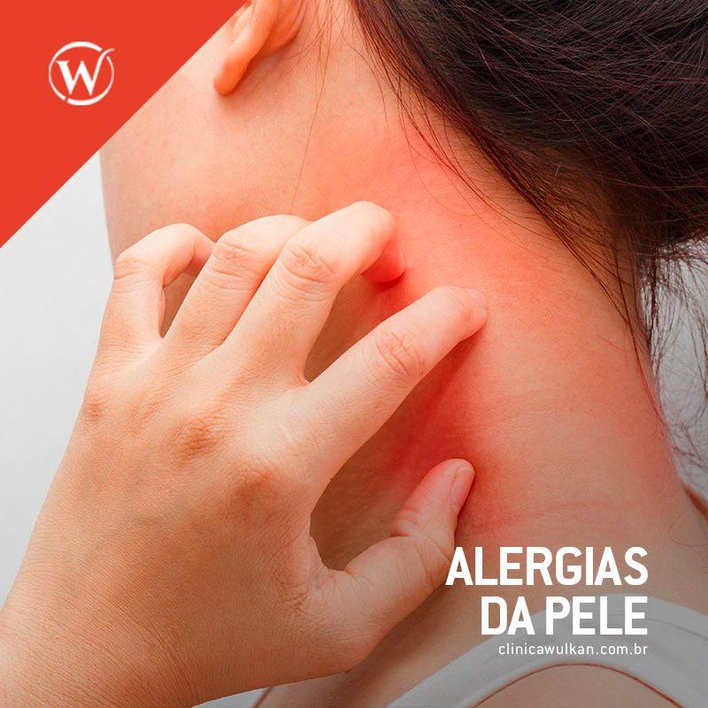 Alergias da Pele