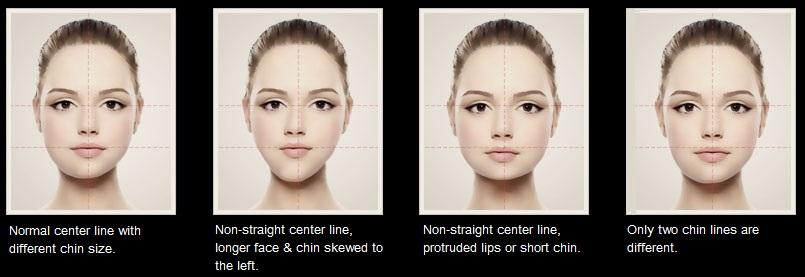 especialista-sp-harmonizacao-facial