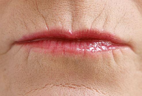 labio velho tratamento preenchimento