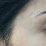 tratamento veias rosto