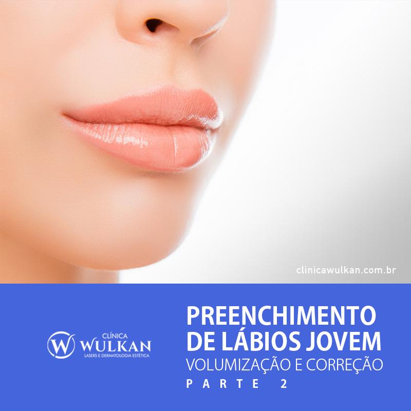 Preenchimento de lábios (Parte 2) - Preenchimento de lábios jovem – Volumização e Correção