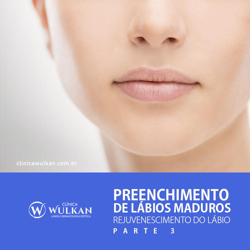 Preenchimento de lábios maduros – Rejuvenescimento do Lábio
