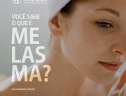 Você sabe o que é Melasma?