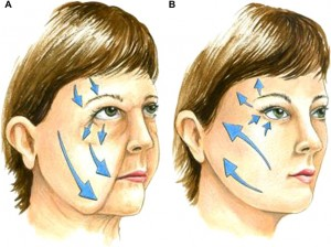 Preenchimento da maçã do rosto com Dermatologista