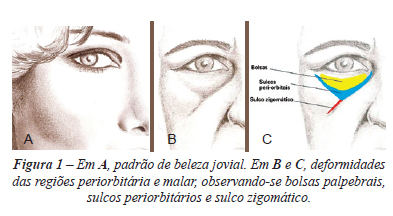 Preenchimento da maçã do rosto com Dermatologista restylane