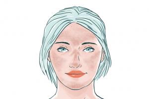 tratamento do melasma em sp