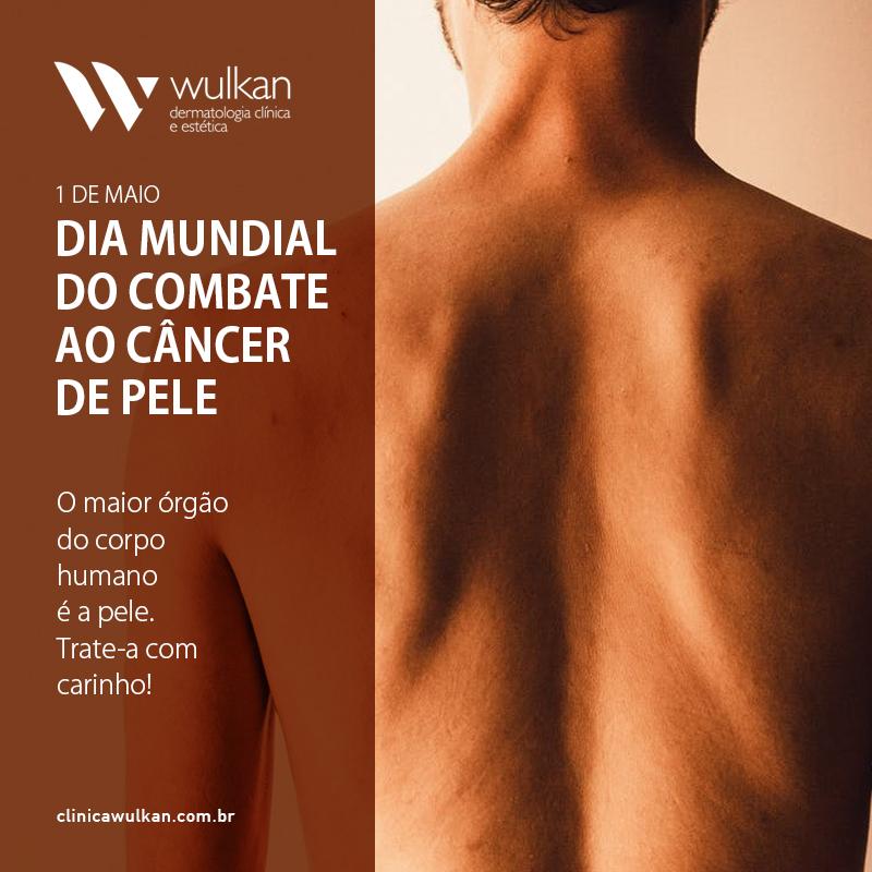 1 de maio. Dia Mundial do Combate ao Câncer de Pele