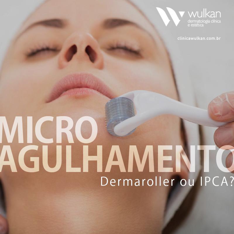 MICROAGULHAMENTO - DERMAROLLER OU IPCA