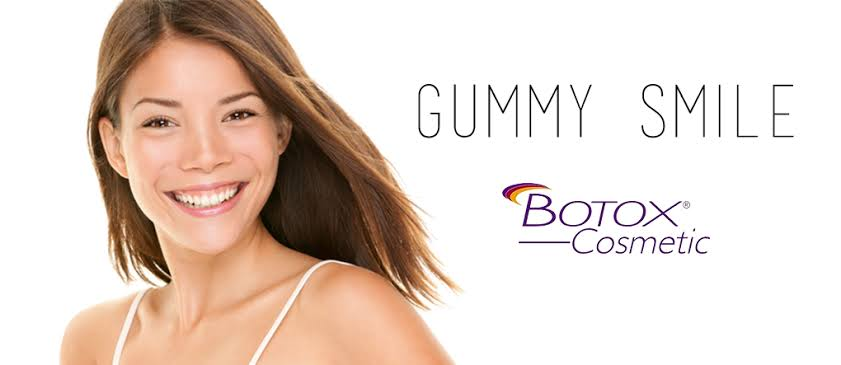 Como tratar o sorriso gengival com botox