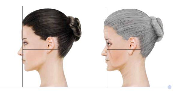 harmonizacao facial x md codes