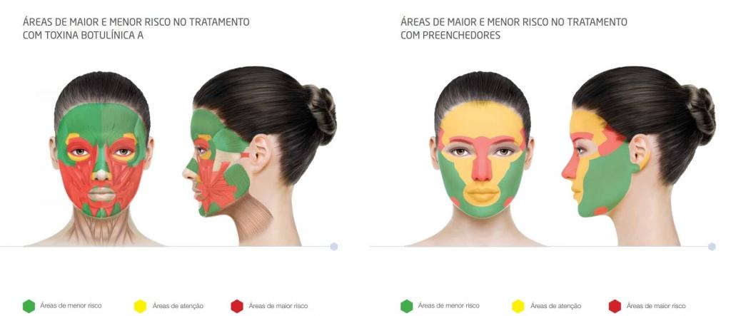 Aplicação de Sculptra com Dermatologista em São Paulo