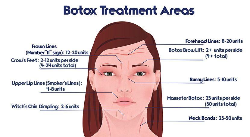 tratamento Osasco aplicação botox