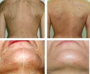 depilação laser antes e depois