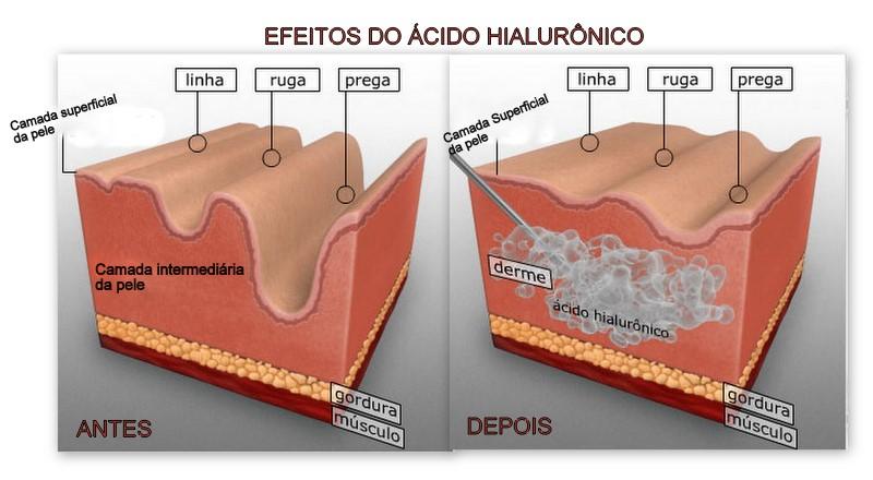 ácido hialurônico tratamento acne